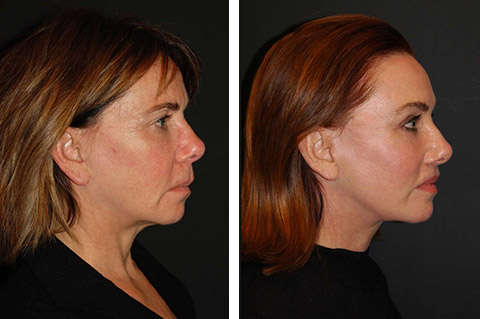 best facelift surgery patient results