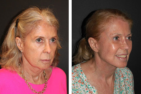 best lower facelift before and after