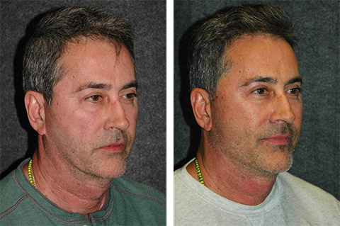 best male facelift surgeon world