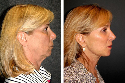 best neck lift surgeon in the world