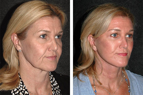 best new york facelift photos