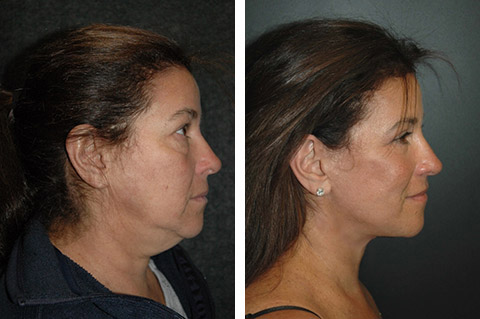 best nyc facelift results