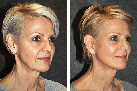 best usa facelift surgeon