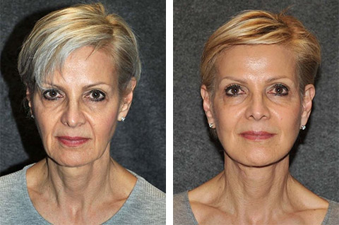 best usa facelift surgery results