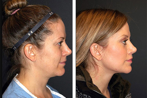 facelift at forty before after