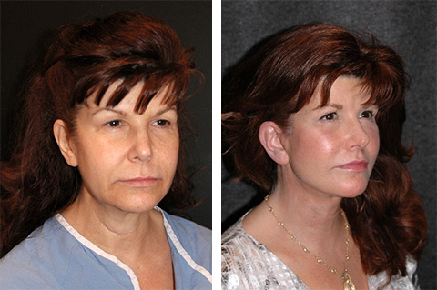 facelift before and after 50 year old