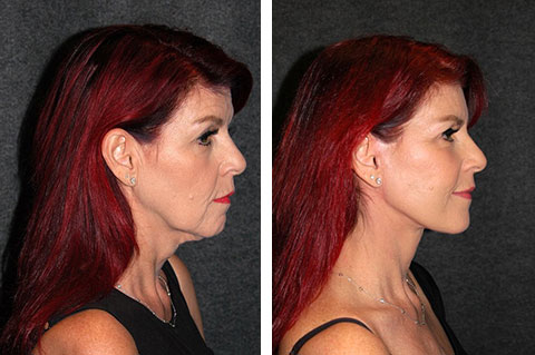 facelift before and after 60 year old