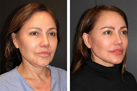 facelift patient before after new york