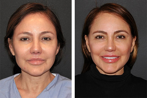 facelift patient before after nyc
