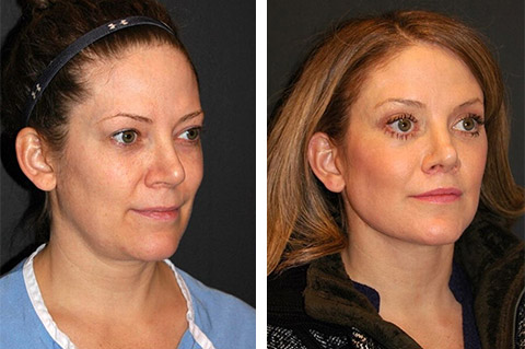 forty yr old mini facelift before after