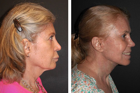 lower facelift before and after 60 year old