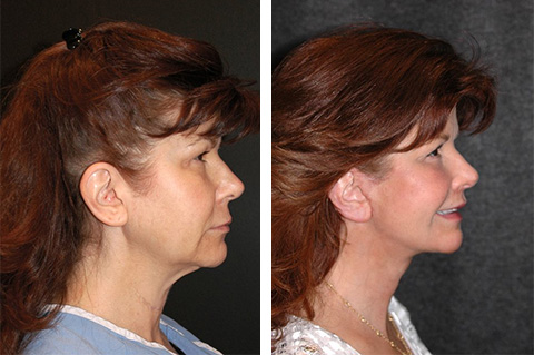 mini facelift before and after 50 year old