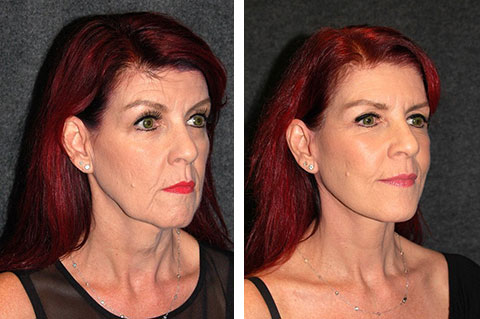 mini facelift before and after 60 year old
