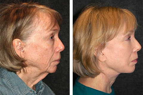neck lift before after nyc