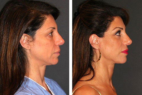 short scar facelift before and after 50 year old