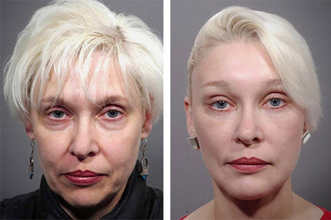 worlds best facelift surgeon