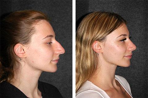 best rhinoplasty results