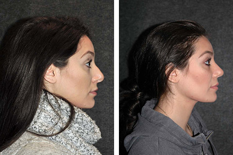 closed rhinoplasty before and after