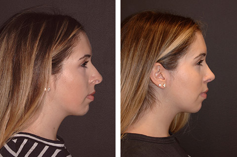open rhinoplasty before and after