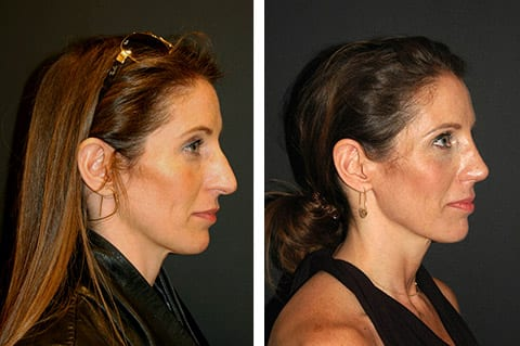open rhinoplasty before and after nyc