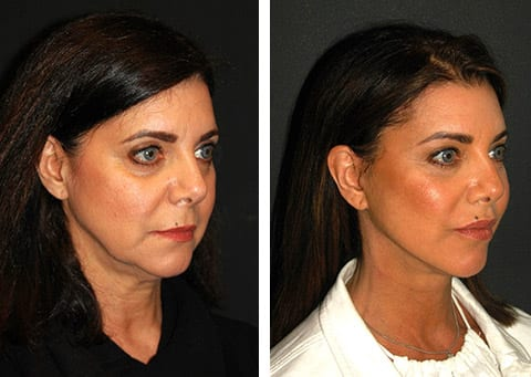 best facelift results nyc