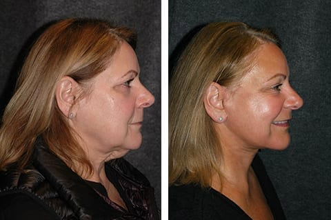 best lower smas facelift before and after