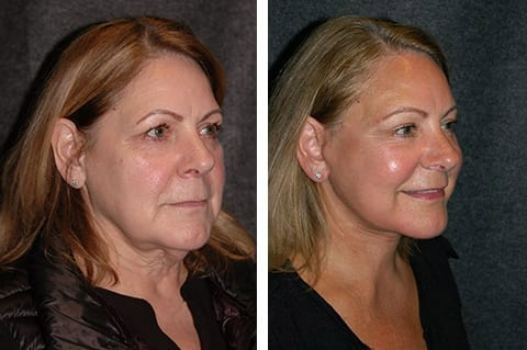 lower smas facelift before and after