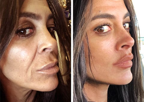 best lip lift facelift surgeon