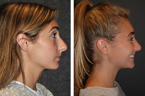 closed rhinoplasty before after