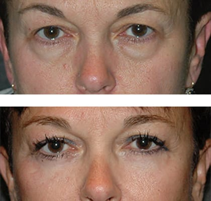 best eyelid before after