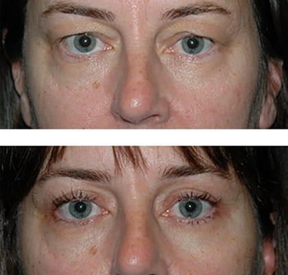 best eye lid surgery nyc