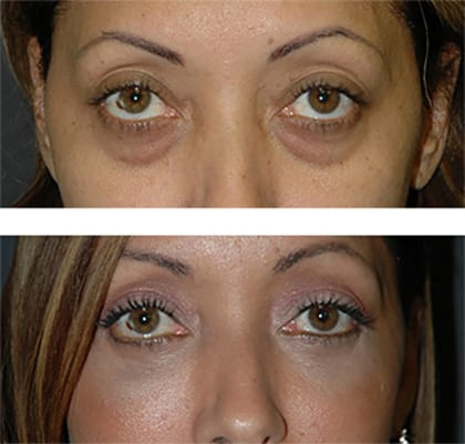 best eyelid lift nyc
