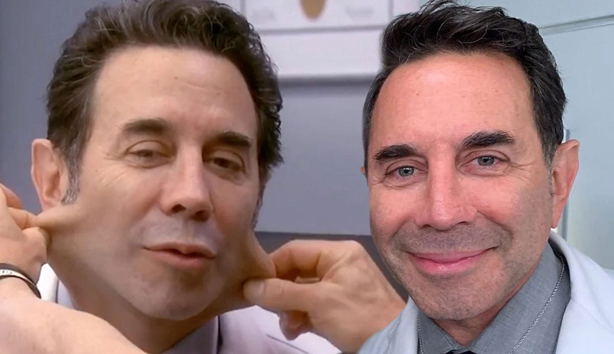 botched star dr paul nassif gets facelift