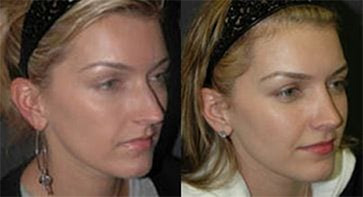 best rhinoplasty surgeon