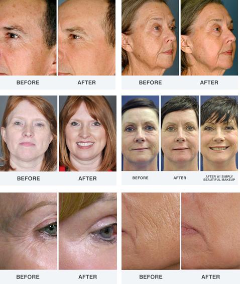 skin-anti-aging-proof