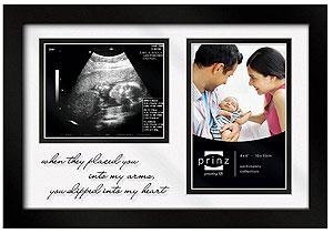 Prinz Sonogram Ultrasound Picture Frame