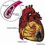 Cholesterol -- the slow killer