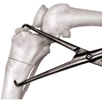 Forcep, bone fragment, X-large