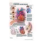 POSTER,POST IT,ACUTE CORONARY DISEASE,EACH