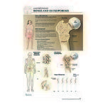 POSTER,POST-IT,BODY SCI,OSTEOPOROSIS,EA