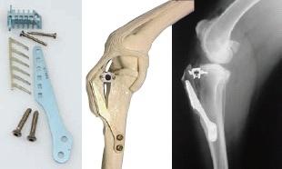 Kit, knee cruciate repair kit, 2.7mm cortical self tapping 10mm 2.0mm