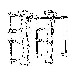 "Rod, 5/16"" x 8"" length, connecting"
