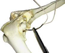 Suture, cruciate repair, nylon 80lb dble strand w/ needle, 2 crimps