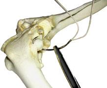 Suture, cruciate repair, nylon 100lb dble strand w/needle, 2 crimps