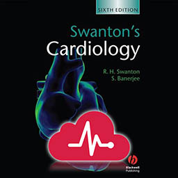 Swanton's Cardiology A Concise Guide to Clinical Practice