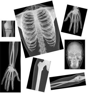 True-to-Life Human X-Rays
