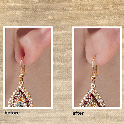 Miracle Earring Support Tape