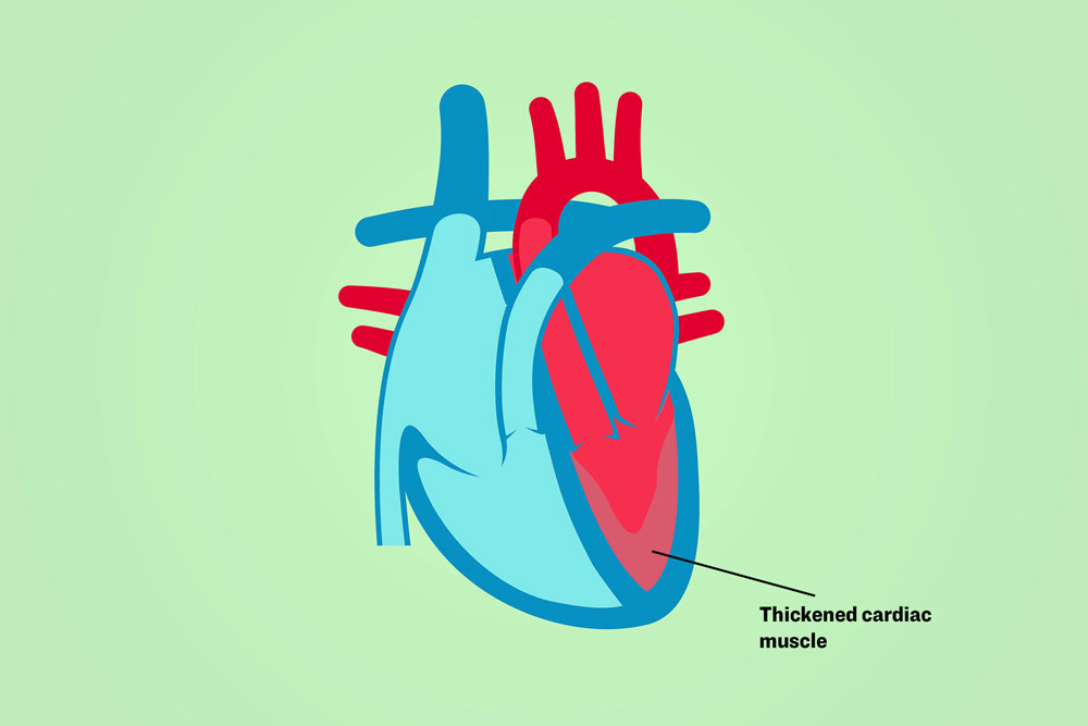 Illustration of a heart showing thickened cardiac muscle