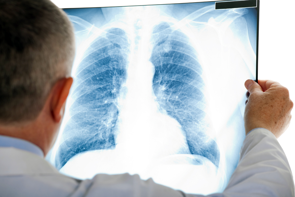 Q&A: Can Targeted Therapies and Immunotherapies Treating Lung Cancer Stop Working?