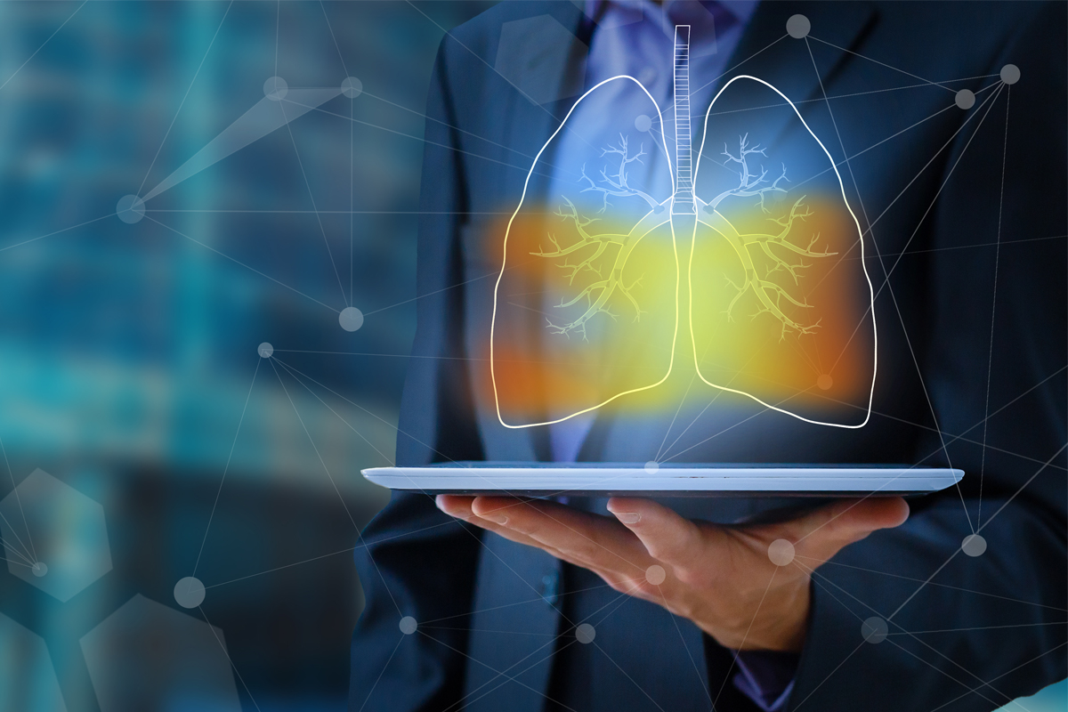 Can Artificial Intelligence Predict Lung Cancer Outcomes?